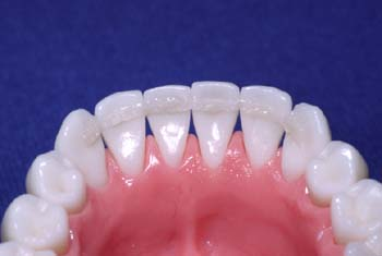 Remove excess composite and cure